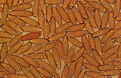 Basidiosporas_de_Boletus_reticulatus